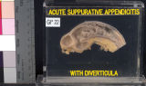 Gastrointestinal: Acute Suppurative Appendicitis With Diverticula