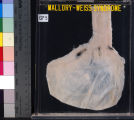 Gastrointestinal: Mallory-Weiss Syndrome