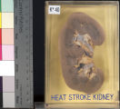 Kidney: Heat Stroke Kidney