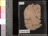 Brain: Cortical Infarct