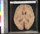 Brain: Mass in Grey-White Junction, Probable Metastasis
