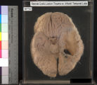 Brain: Remote Cystic Lesion (Trauma vs Infarct) Temporal Lobe