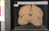 Brain: Probable Pituitary Adenoma (Mass in Third Ventricle)