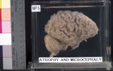 Brain: Atrophy and Microcephaly