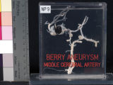 Brain: Berry Aneurysm (Circle of Willis)