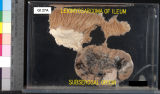 Gastrointestinal: Leiomyosarcoma of Ileum