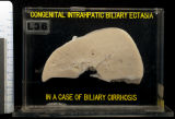 Liver: Biliary Cirrhosis